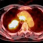 Tumörens starka sockersug