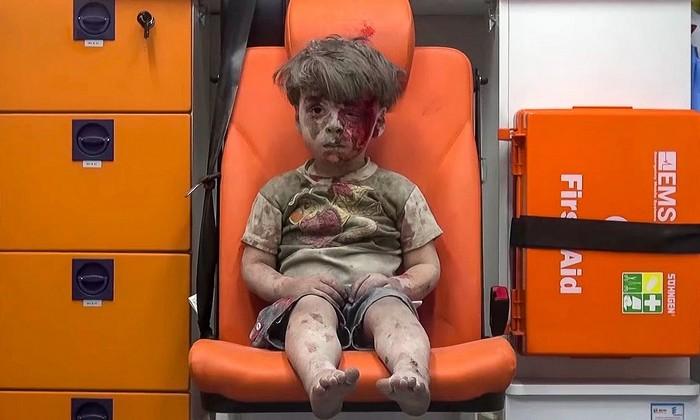 Omran Daqneesh (5 ani), victimă a bombardamentelor din Alep, Siria. Imaginea a făcut înconjurul lumii