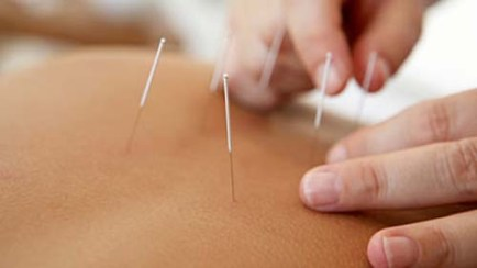 Acupuncture Toronto