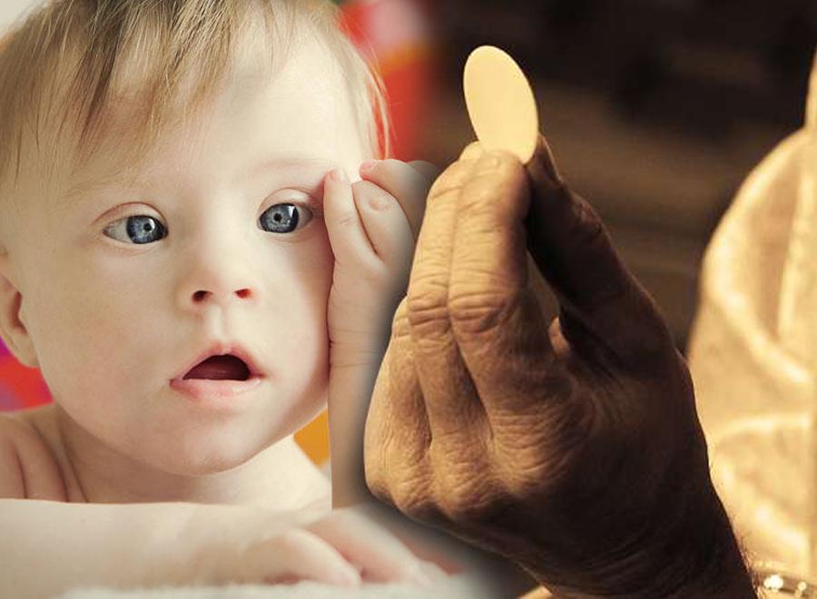 Smije li svećenik odbiti pričestiti dijete s Downovim sindromom?