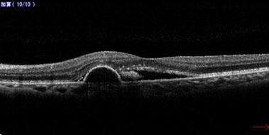 網膜下出血、網膜色素上皮剥離、網膜下液を認める。