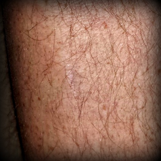 Ax scar on my shin