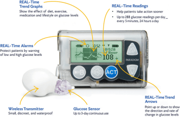 Insulin Pump and Continuous Glucose Monitor