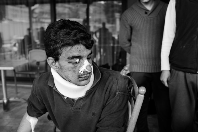 27-year-old Iraqi refugee, Mohammed Kelani. He was attacked in the Macedonian woods. Evzoni, Greece 2015. © Matteo Bastianelli