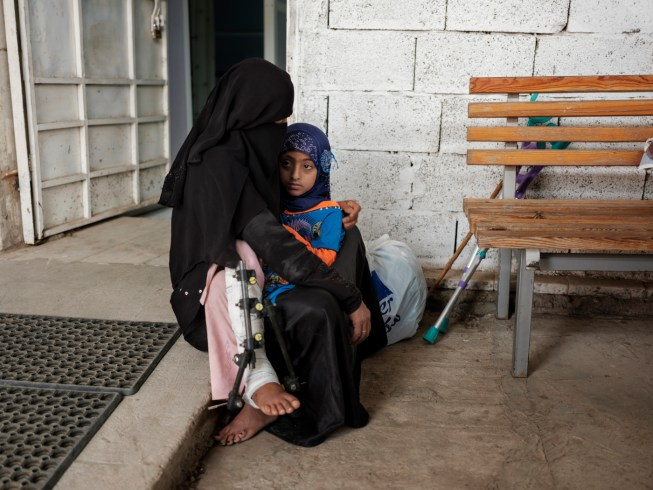 9-year-old Arzaa Abdalbaqu Abdella, with an open complex fracture on her right leg caused from shards from a rock, is seen in her mother's arms inside the trauma center in Al Houban, a district of Taiz city. An average of five children have been killed or injured each day since the conflict began, according to UNICEF. Taiz, Yemen 2018. © Matteo Bastianelli