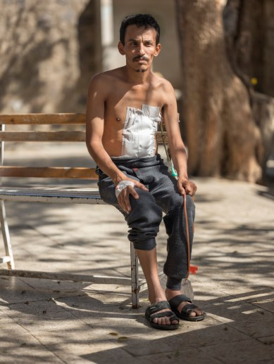 25-year-old Mohammed Naji is seen portrayed outside the Inpatient department (IPD) of the Al-Nasser Hospital, where he has been hospitalized for 20 days. He was at a wedding ceremony when suddenly a bullet falling from the sky hit his back and came out through his stomach. Ad Dhale, Yemen 2018. © Matteo Bastianelli