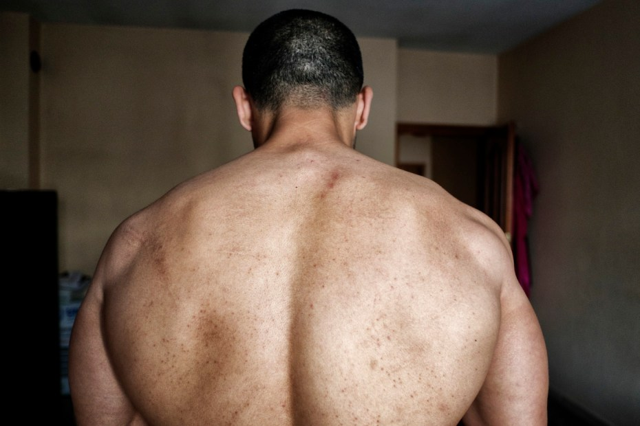 39-year-old award-winning Syrian bodybuilder, Ibrahim Shehabi, is seen in his bedroom. The scars of 30 months of torture in a prison in Aleppo are shown on his back. He has already had 8 surgical operations and he will still have to undergo other surgery. Istanbul, Turkey 2016. © Matteo Bastianelli