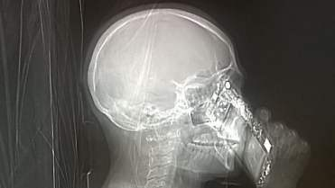 La TAC della paziente mentre risponde al cellulare
