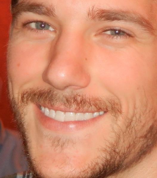 Matt's Smile