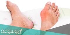 ما هو النقرس وما هي أعراضه وأسبابه ومضاعفاته وكيفية علاجه