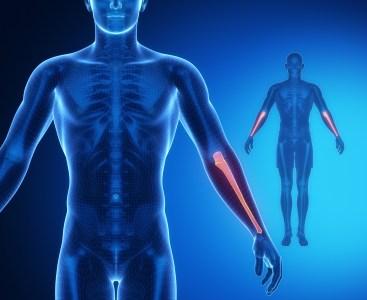 前腕筋 CT画像