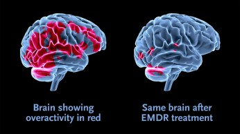 brain showing over activity in red compared to brain after emdr treatment with less red overactivity