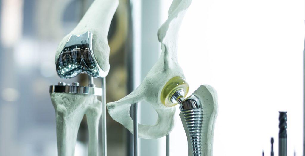 hip implant failure
