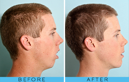 Mouth Breathing Where Dentistry Is Done Differently