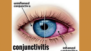 Pink Eye Cases in Jamaica