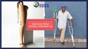 Man Appeals for Prosthetic Leg