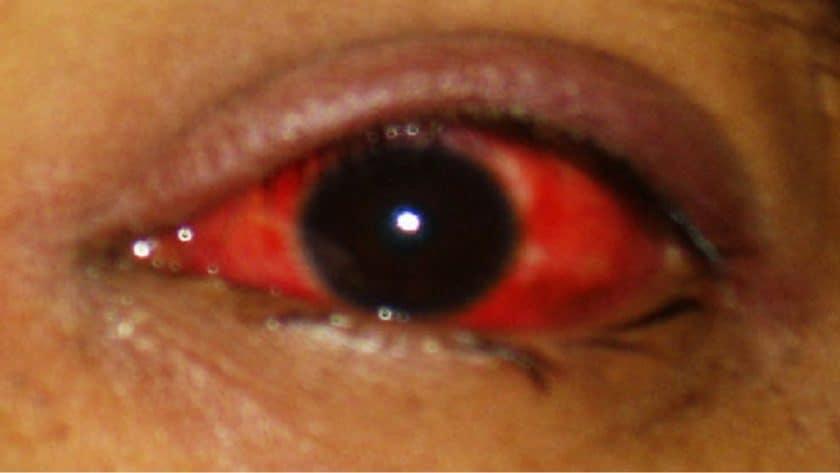 Pink Eye Alert