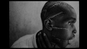 The Face Of A Rwanda Genocide Survivor