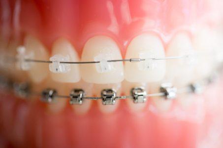 Gigi Lurus = Gigi Sehat- Global Estetik Dental Care