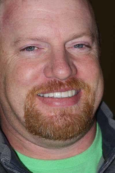 after dental veneer smile