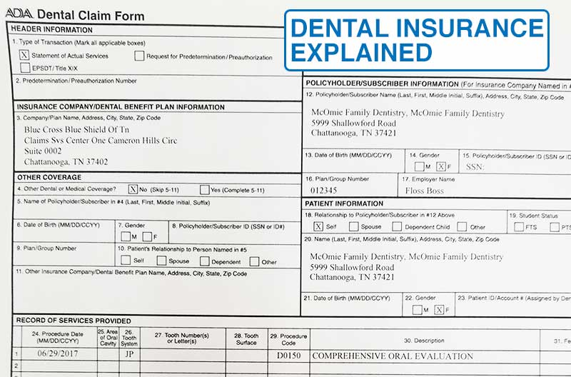 Confused By Dental Insurance? We Have The answers - McOmie Dentistry