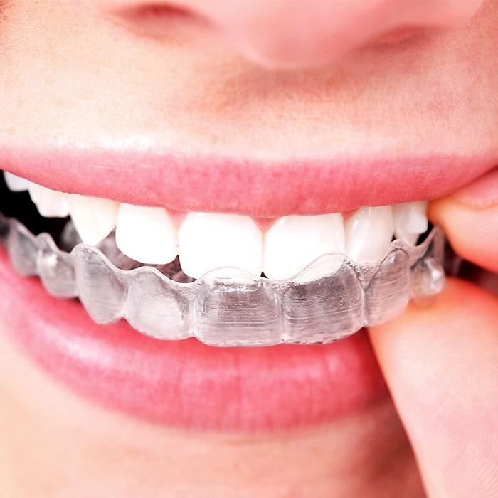 align teeth clear aligners