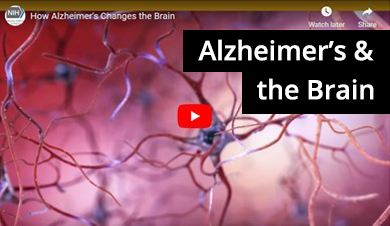 How Alzheimer's changes the brain video