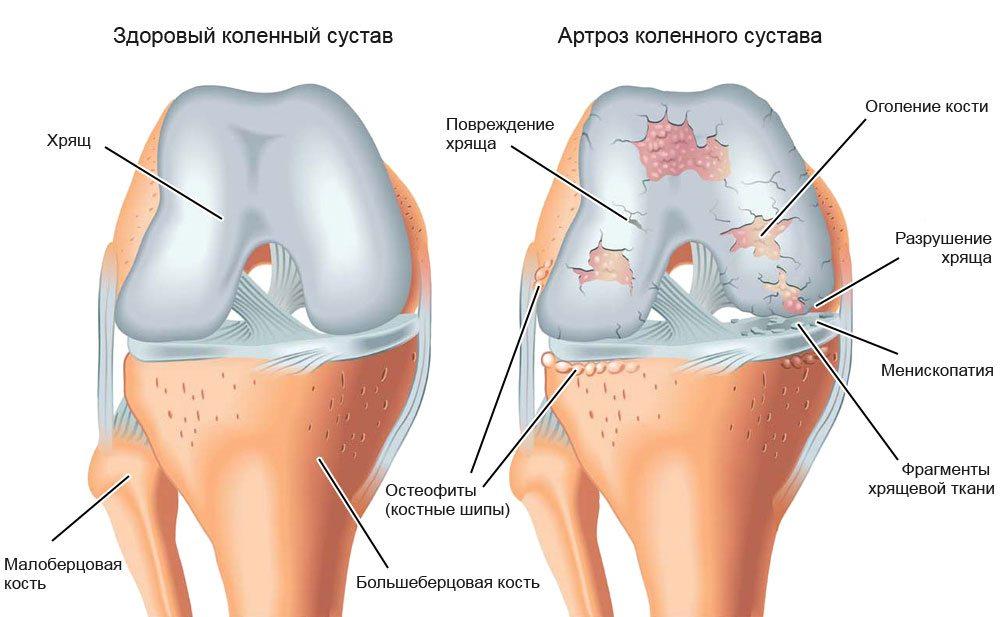 Лечения артрита препараты
