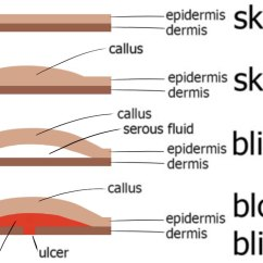 Skin Layers Diagram Labeled Simple Twisted Pair Wiring Of Epidermis With Blister Data Schema Today