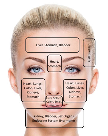hormonal acne diagram iron carbide equilibrium the center for advanced dermatology face map phoenix
