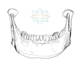 Human Mandible Diagram Arc Fault Circuit Breaker Wiring Fracture Archives Md Direct Latmandible Front With Orientation 01
