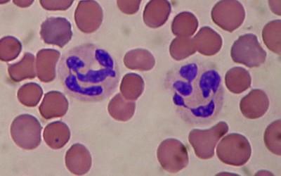 Leukocytosis; Pleocytosis