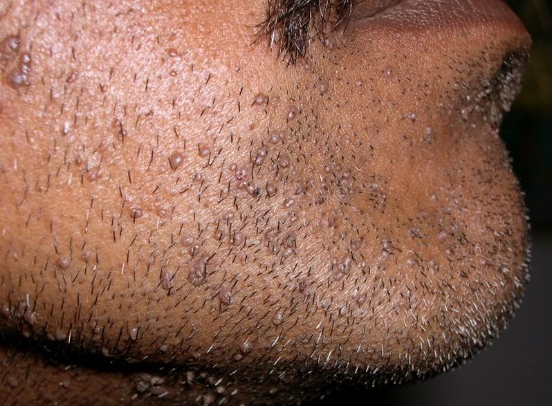 Filiform Warts - Pictures Causes Treatment Contagious