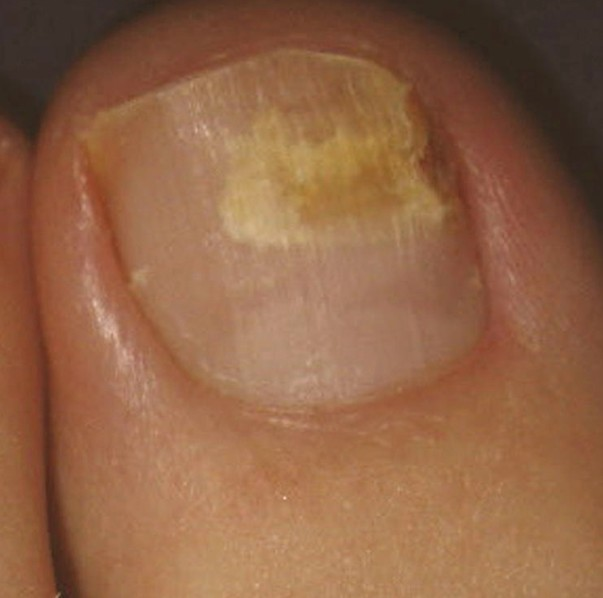how to get rid of yellow toenails with vicks