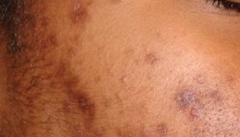 Topical Tranexamic Acid: A New Treatment for Dark Spots