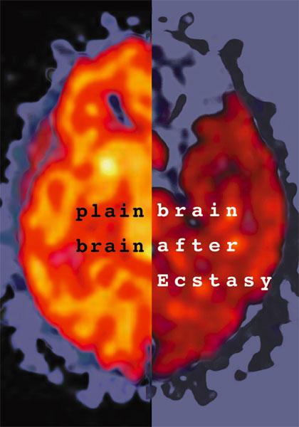 Effetti dellecstasy/mdma sul cervello