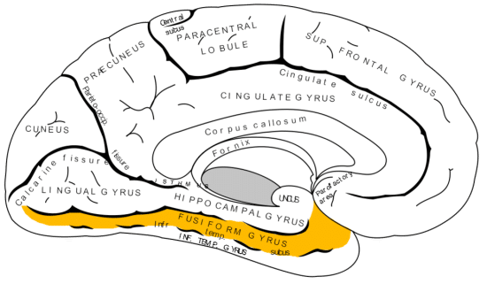 Fig. 1. Neural misfiring in the fusiform gyrus might be a cause of Cotard's Syndrome (Pearn 2002)