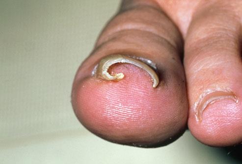 Σκληρό νύχι στο πόδι; Υπάρχει κι αυτό το κόλπο!