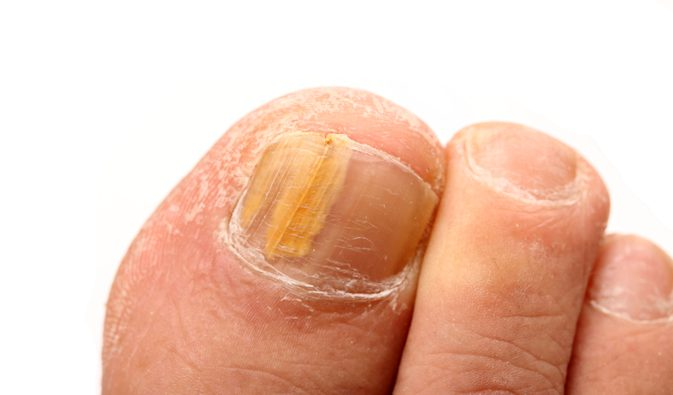 Για τους μύκητες στα νύχια των ποδιών