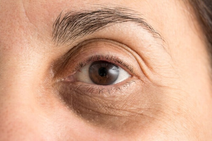 Αν έχεις μαύρους κύκλους κάτω από τα μάτια