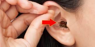 Μπήκε έντομο στο αυτί;