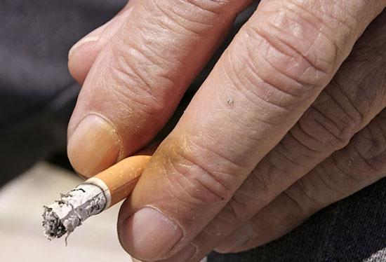 Νύχια που κιτρίνισαν από μανό ή τσιγάρο