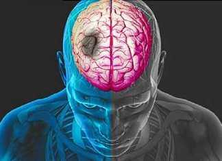 Διατροφικοί κανόνες για την αποφυγή εγκεφαλικού