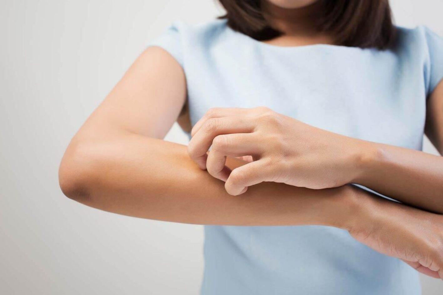 علاجات منزلية لحكة الجلد