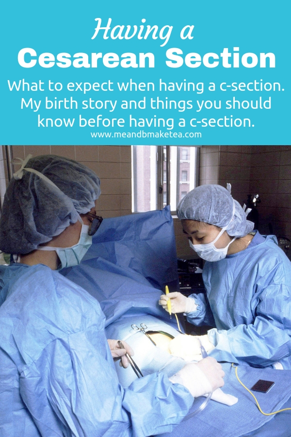 Having a c-section and what to expect.