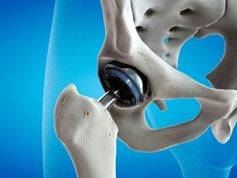 Hip dysplasia prosthetic hip