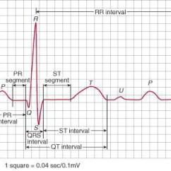 12 Lead Ekg Placement Diagram Explain Schematic And Wiring Diagrams Hart | M.e.(cvs)-wetenschap