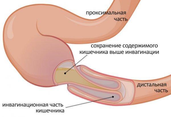 ízületi fájdalom a dermedés után