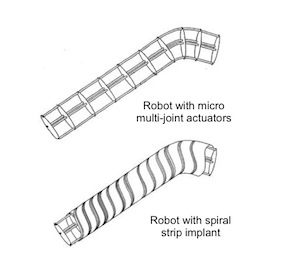 Spiral Strip Cochlear Implant & Multi-Joint Insertion