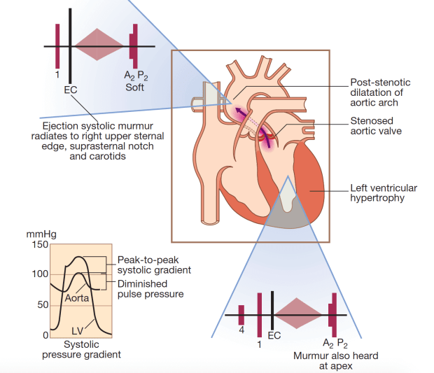 Aortic Stenosis Rimikri Med